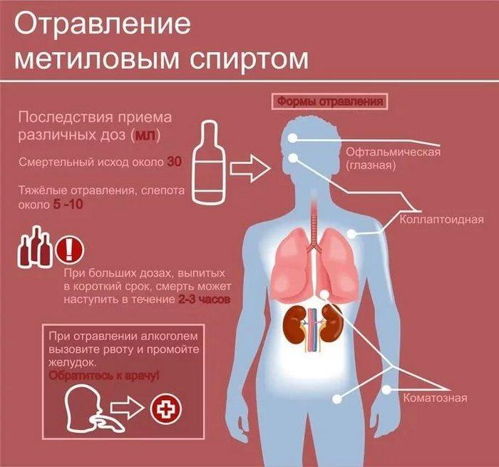 Отравление метиловым спиртом