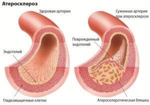 Лечение бабушкиными средствами чистка сосудов чесноком